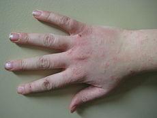 έκζεμα δερματίτιδα
